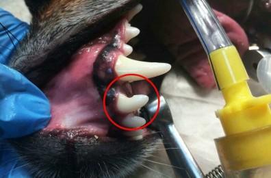 Травматический перелом зуба
